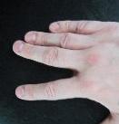 Splithand